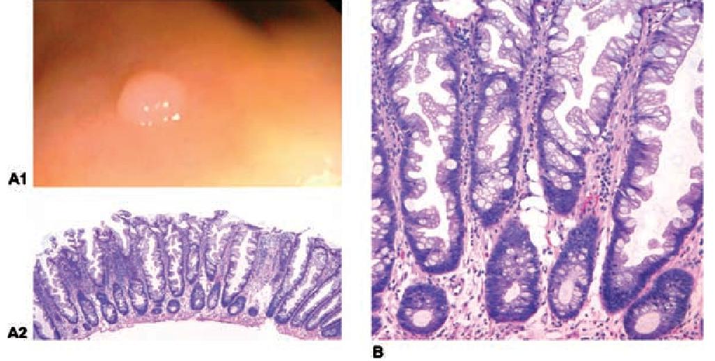 Гиперпластический полип толстой кишки