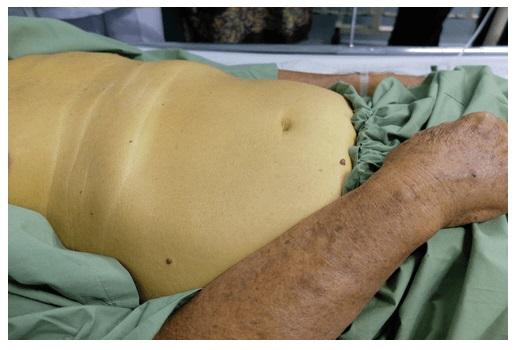 Симптоматика гепатомегалии
