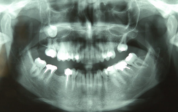 Кистозное заболевание зуба