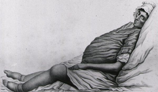 Заболевание водянка у женщины