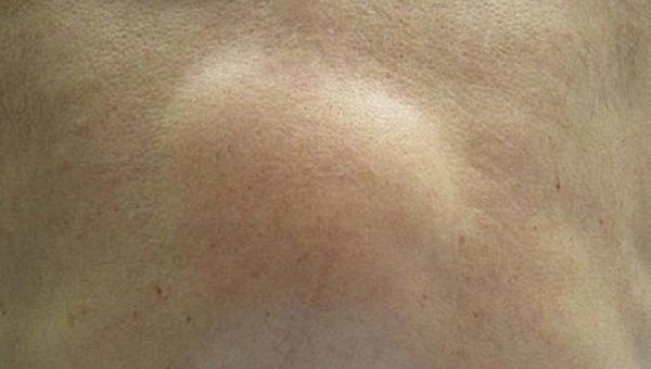 Кистозный узел на кишечнике