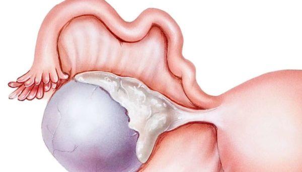 Опухоль кисты яичника