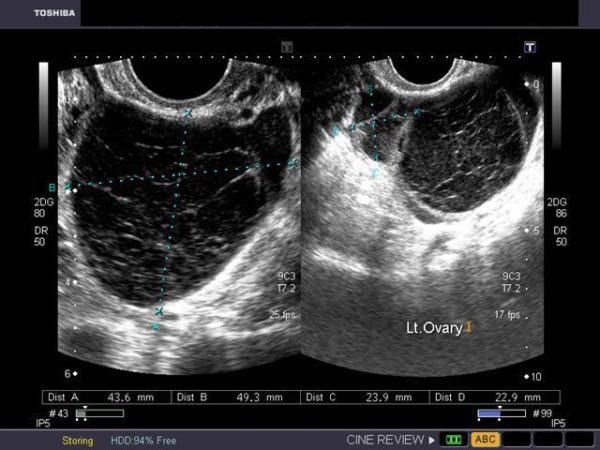 Киста на яичнике во время беременности