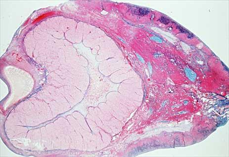 Временная железа яичника
