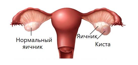 Кистозное образование яичника