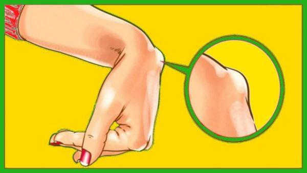 Гигрома на руке