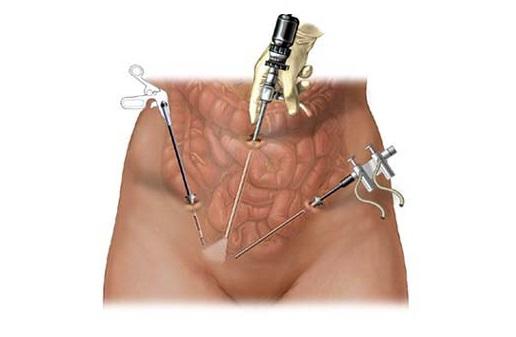 Хирургическое удаление кисты яичника
