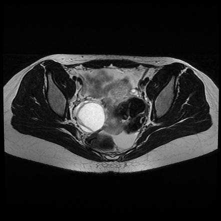 Разрыв кистозной капсулы на яичнике