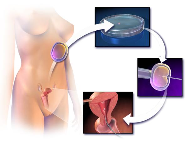 Процедура ЭКО женщине