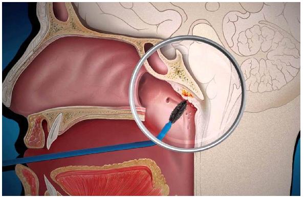Биопсия кисты в носоглотке