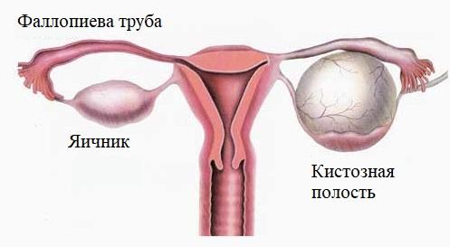 Кистозная полость с менструальной кровью