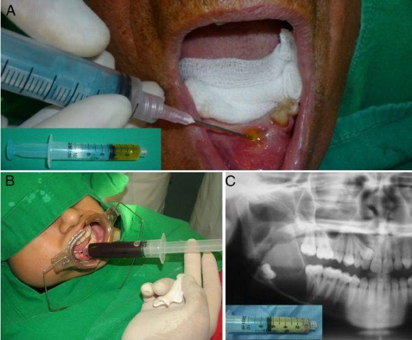 Пункция костной кисты