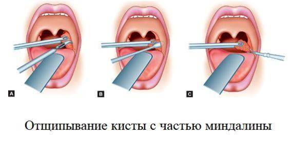 Удаление кисты на миндалинах щипцами