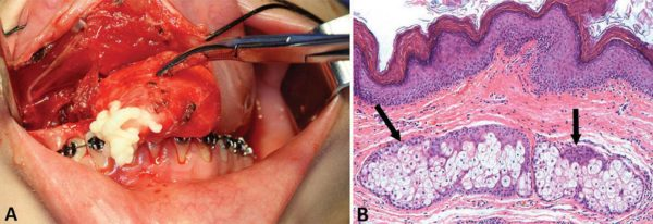 Дермоидная киста внутри рта