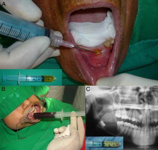 Биопсия кисты челюсти