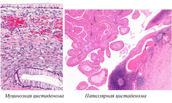 Муцинозная и папиллярная цистаденомы