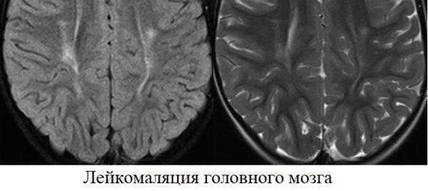 Лейкомаляция головного мозга