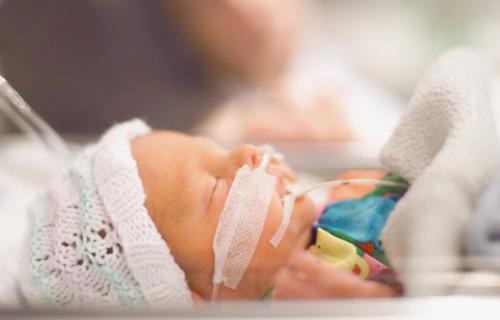 Новорождённый на ИВЛ