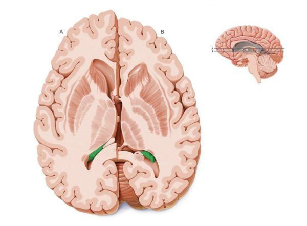 Сосудистые сплетения головного мозга