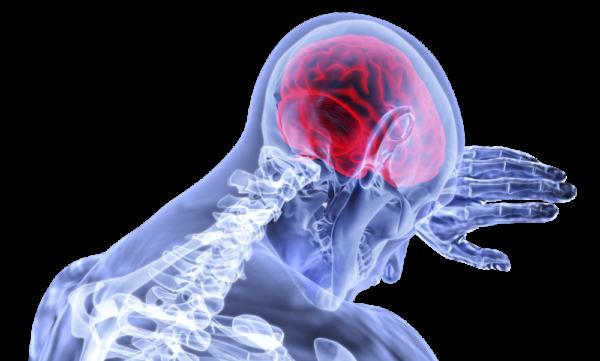 Яркие неврологические симптомы кисты