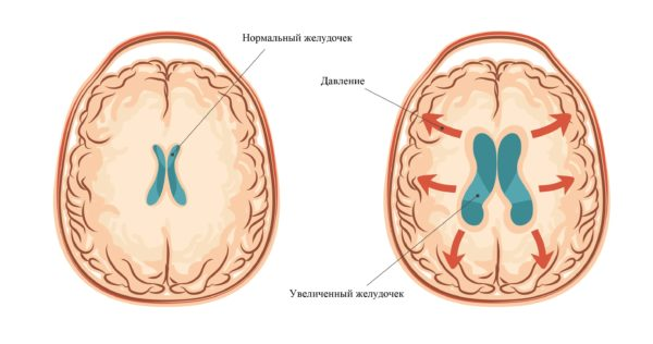 Гидроцефальный синдром