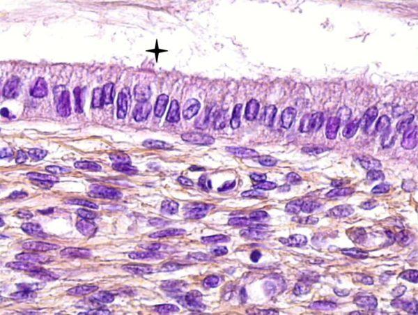 Эпителий цервикального канала эндоцервикс