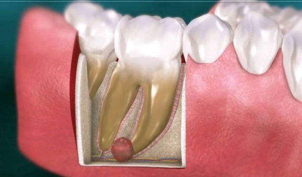 Киста в зубе