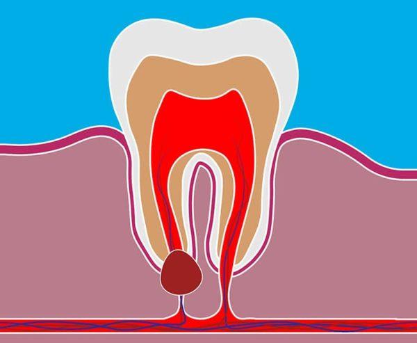 Образование кисты на зубе