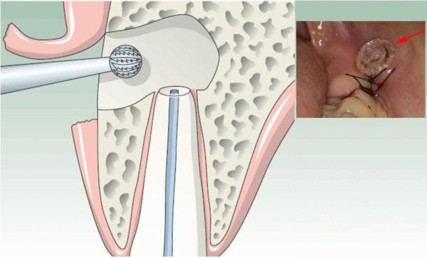 Цистэктомия кисты на зубе