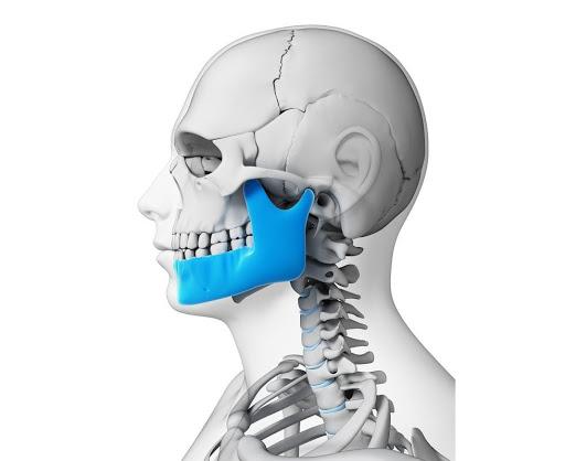 Перелом челюсти человека