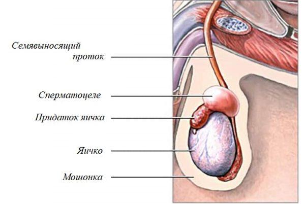 Дизонтогенетическая киста мошонки