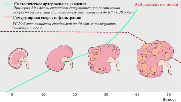 Аутосомно-доминантный поликистоз почки