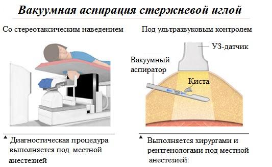Вакуумная аспирация кисты груди