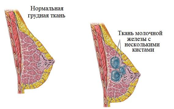 Узловая кистозная мастопатия