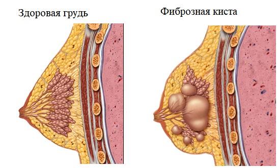 Фиброзная киста в молочной железе