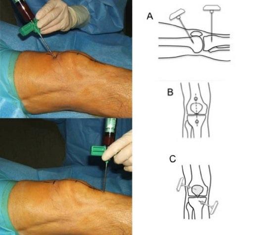 Пункция кисты в колене